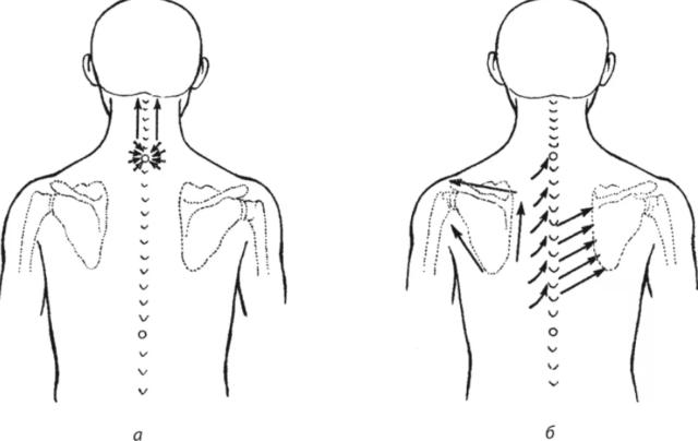 схема массажа шейно-воротниковой зоны