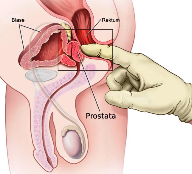 массаж предстательной железы пальцем